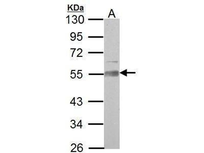 Western Blotting (WB) image for anti-Angio-Associated, Migratory Cell Protein (AAMP) (AA 223-434) antibody (ABIN558359)