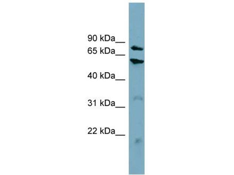 Western Blotting (WB) image for anti-Carnitine Palmitoyltransferase 1B (Muscle) (CPT1B) (Middle Region) antibody (ABIN2782633)