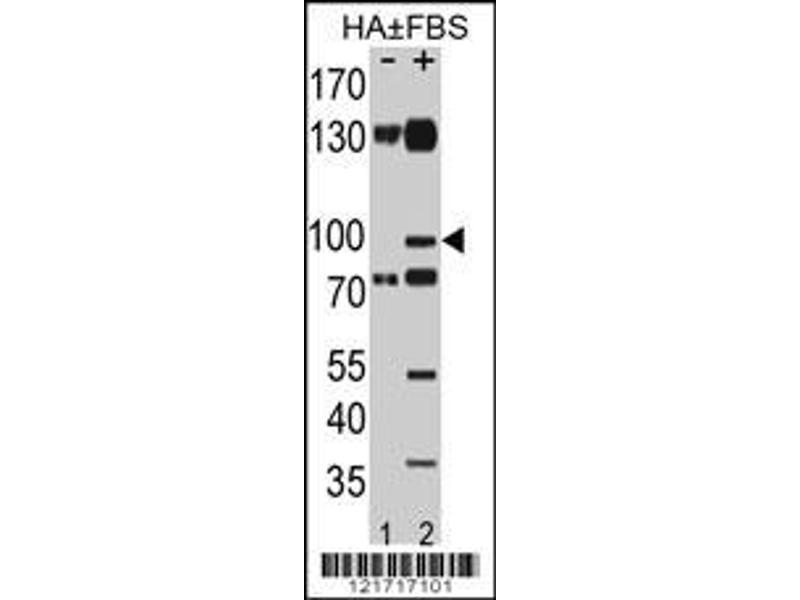Western Blotting (WB) image for anti-EPH Receptor A2 antibody (EPHA2) (pSer897) (ABIN650858)