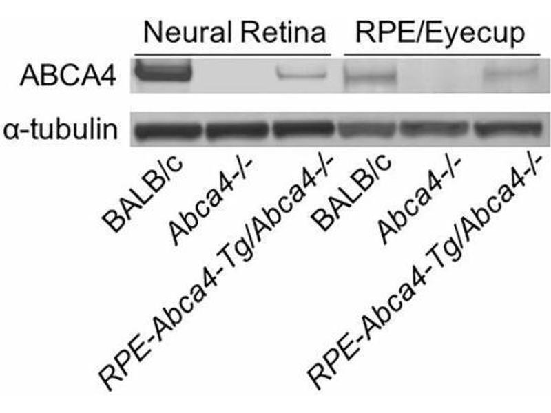 Image no. 1 for anti-ATP-Binding Cassette, Sub-Family A (ABC1), Member 4 (ABCA4) (AA 2250-2263) antibody (ABIN343052)