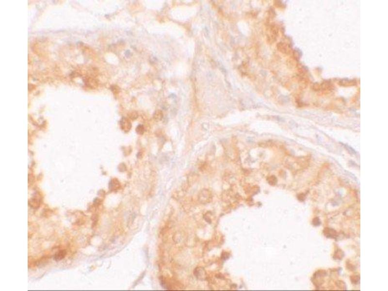 Immunohistochemistry (IHC) image for anti-Y Box Binding Protein 2 (YBX2) (C-Term) antibody (ABIN4335905)