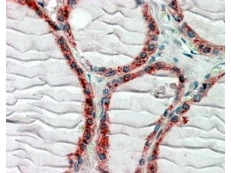 Immunohistochemistry (Paraffin-embedded Sections) (IHC (p)) image for anti-CAP-GLY Domain Containing Linker Protein 1 (CLIP1) (C-Term), (both Isoforms) antibody (ABIN451789)