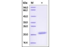 Image no. 1 for C-Type Lectin Domain Family 3, Member B (CLEC3B) (AA 22-202) protein (His tag) (ABIN2180883)