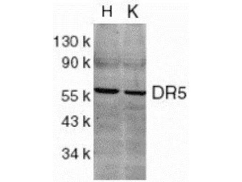 Western Blotting (WB) image for anti-TNFRSF10B antibody (Tumor Necrosis Factor Receptor Superfamily, Member 10b) (ABIN151173)