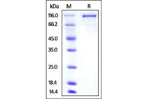 Image no. 1 for Transferrin Receptor 2 (TFR2) (AA 103-798) protein (Fc Tag) (ABIN4949192)