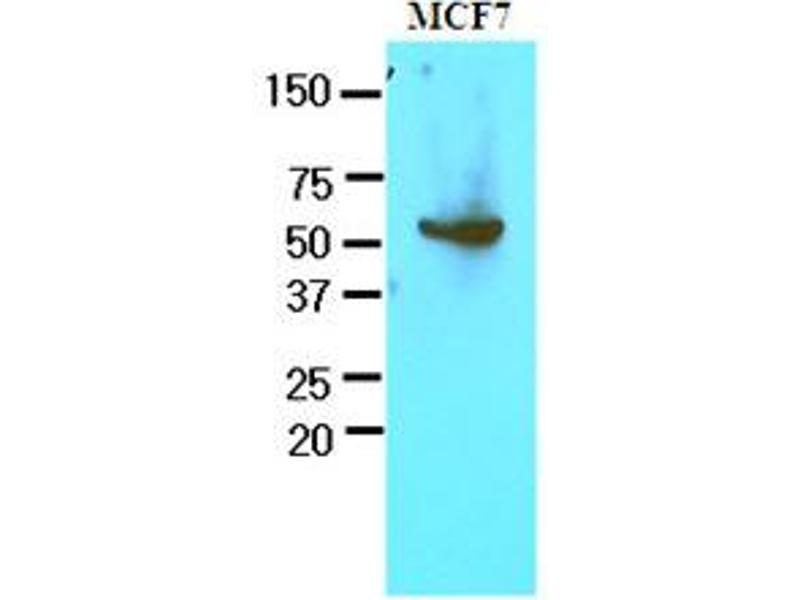 Western Blotting (WB) image for anti-Glucose-6-Phosphate Dehydrogenase (G6PD) (AA 35-506) antibody (ABIN400862)