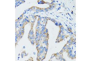 Image no. 3 for anti-rho GTPase Activating Protein 4 (ARHGAP4) antibody (ABIN6569356)