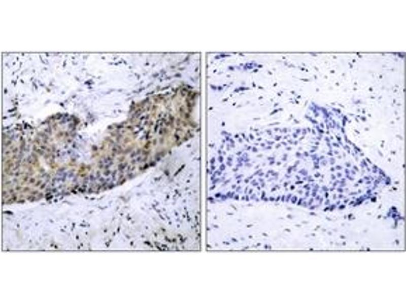 Immunohistochemistry (IHC) image for anti-Kinase insert Domain Receptor (A Type III Receptor tyrosine Kinase) (KDR) (AA 1180-1229) antibody (ABIN1533037)