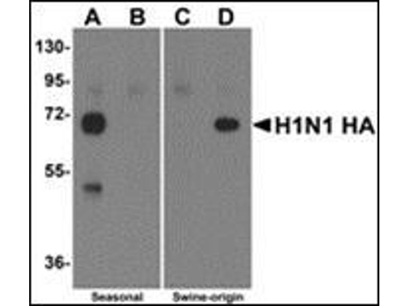 Western Blotting (WB) image for anti-Seasonal H1N1 Hemagglutinin antibody (ABIN500696)