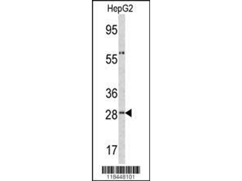 Western Blotting (WB) image for anti-Orosomucoid 1 (ORM1) (AA 152-180), (C-Term) antibody (ABIN390444)