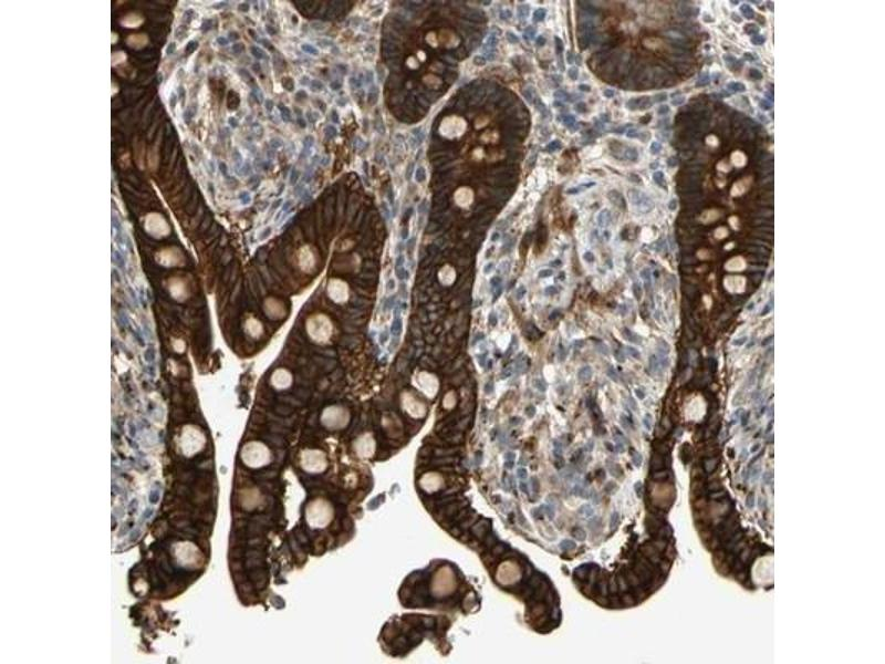 Immunohistochemistry (Paraffin-embedded Sections) (IHC (p)) image for anti-Ret Proto-Oncogene antibody (RET) (ABIN4350058)