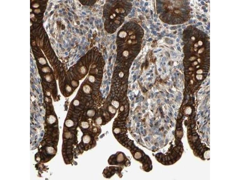 Immunohistochemistry (Paraffin-embedded Sections) (IHC (p)) image for anti-Ret Proto-Oncogene (RET) antibody (ABIN4350058)
