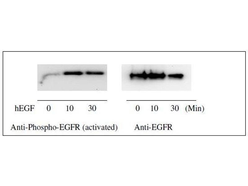 Epidermal Growth Factor Receptor (EGFR) ELISA Kit (11)
