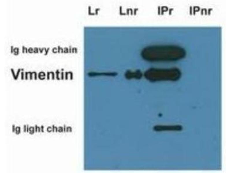 Immunoprecipitation (IP) image for anti-Vimentin (VIM) antibody (ABIN269191)