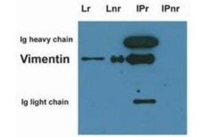 Immunoprecipitation (IP) image for anti-Vimentin antibody (VIM) (ABIN269191)