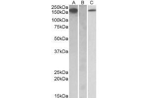 Western Blotting (WB) image for anti-CSF1R antibody (Colony Stimulating Factor 1 Receptor) (ABIN2169324)