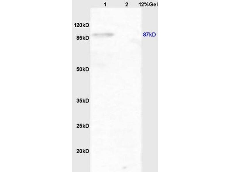 SDS-PAGE (SDS) image for anti-Inhibitor of kappa Light Polypeptide Gene Enhancer in B-Cells, Kinase beta (IKBKB) (AA 180-230), (pTyr199) antibody (ABIN743243)