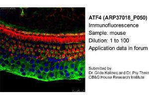 Image no. 1 for anti-Activating Transcription Factor 4 (Tax-Responsive Enhancer Element B67) (ATF4) antibody (ABIN2779919)