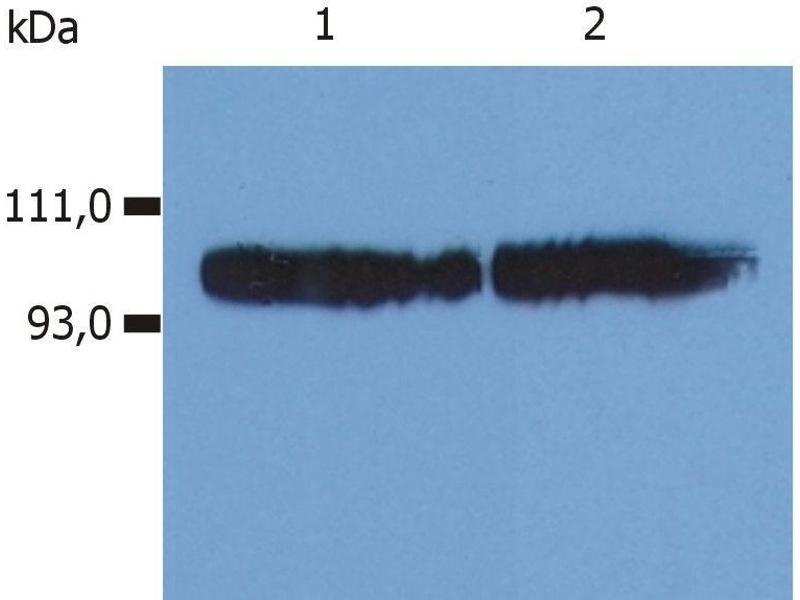 Western Blotting (WB) image for anti-Integrin beta 2 (ITGB2) antibody (APC) (ABIN125688)