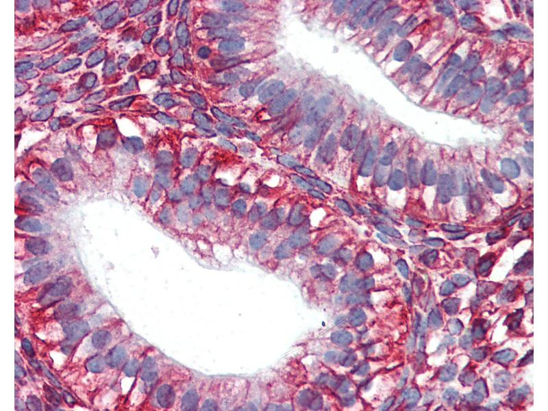 Immunohistochemistry (IHC) image for anti-Vimentin (VIM) antibody (ABIN364428)