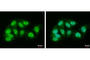 Image no. 1 for anti-Damage Specific DNA Binding Protein 1 (DDB1) (Center) antibody (ABIN2857078)