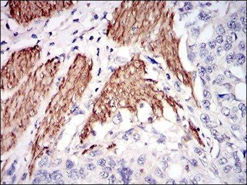 Maus Anti Human Niemann Pick C1 Antik Rper Abin4339683