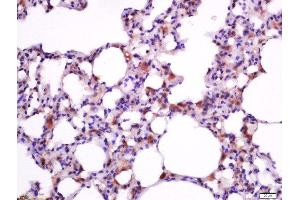 Immunohistochemistry (Paraffin-embedded Sections) (IHC (p)) image for anti-BCL2-Associated X Protein (BAX) (AA 60-110) antibody (ABIN725390)