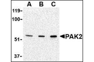 Western Blotting (WB) image for anti-PAK2 antibody (P21-Activated Kinase 2) (N-Term) (ABIN500441)