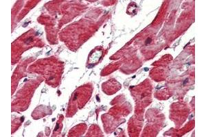 Immunohistochemistry (Paraffin-embedded Sections) (IHC (p)) image for anti-HSPB1 antibody (Heat Shock 27kDa Protein 1) (ABIN615155)
