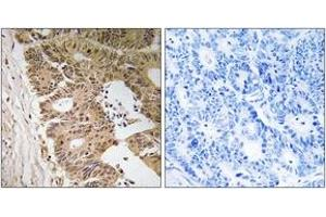 Image no. 2 for anti-Zinc Finger CCCH-Type Containing 8 (ZC3H8) (AA 81-130) antibody (ABIN1535473)