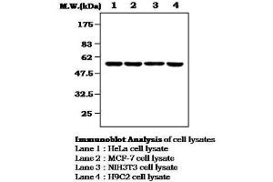 Western Blotting (WB) image for anti-MAP Kinase Interacting serine/threonine Kinase 1 (MKNK1) antibody (ABIN4335142)
