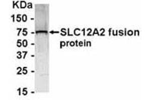 Western Blotting (WB) image for anti-Solute Carrier Family 12 (Potassium-Chloride Transporter) Member 2 (SLC12A2) antibody (ABIN262205)