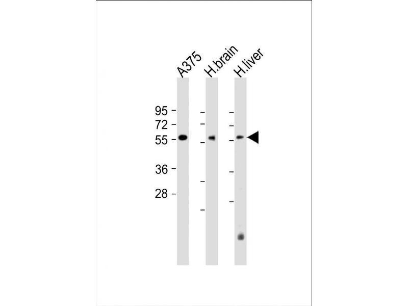 Western Blotting (WB) image for anti-delta Like Protein 3 (DLL3) (AA 519-548), (C-Term) antibody (ABIN653276)