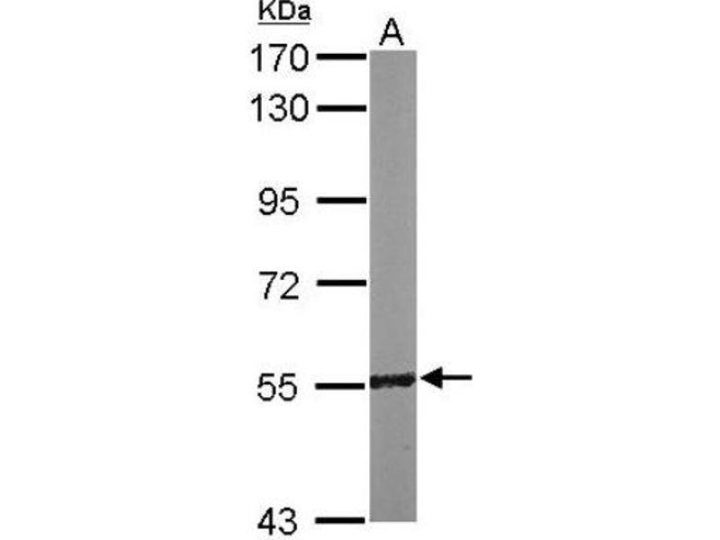 Western Blotting (WB) image for anti-Regulator of Chromosome Condensation 2 (RCC2) (Center) 抗体 (ABIN4349741)