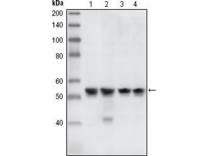 Western Blotting (WB) image for anti-Checkpoint Kinase 1 (CHEK1) antibody (ABIN3209997)