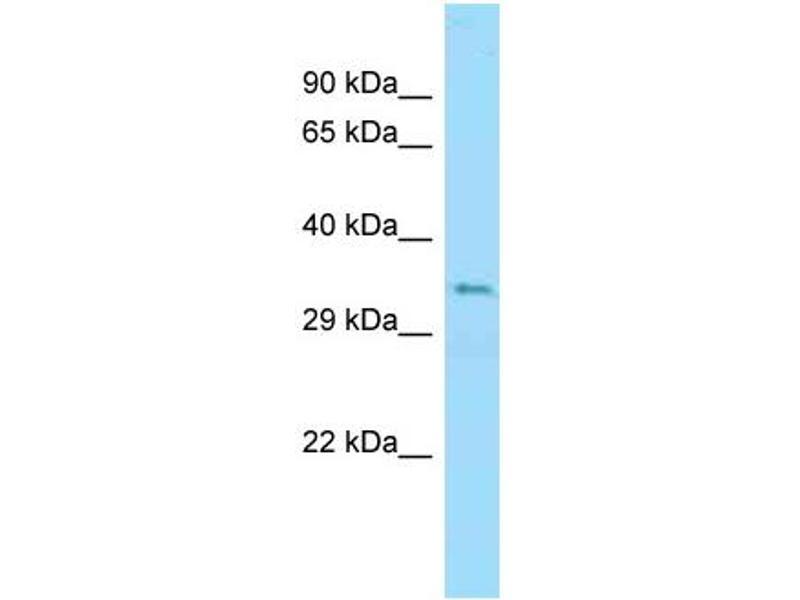 Western Blotting (WB) image for anti-Ubiquitin B (UBB) (N-Term) antibody (ABIN2789325)