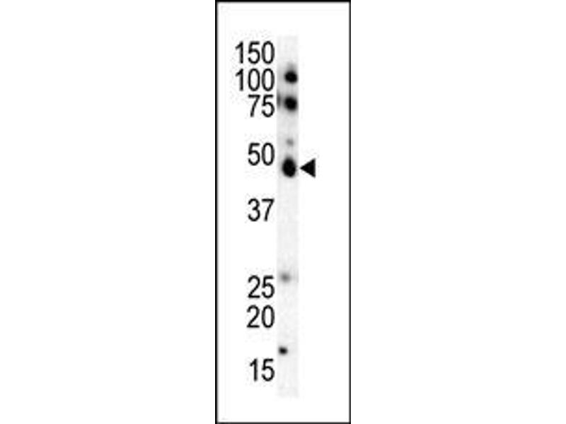 Western Blotting (WB) image for anti-CK1 epsilon antibody (Casein Kinase 1, epsilon) (AA 331-360) (ABIN391600)