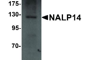 Image no. 1 for anti-NLR Family, Pyrin Domain Containing 14 (NLRP14) (N-Term) antibody (ABIN6656982)
