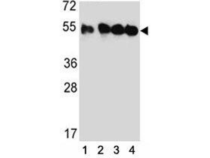Western Blotting (WB) image for anti-Tubulin, Beta, 2C (TUBB2C) (AA 99-125) antibody (ABIN3029344)