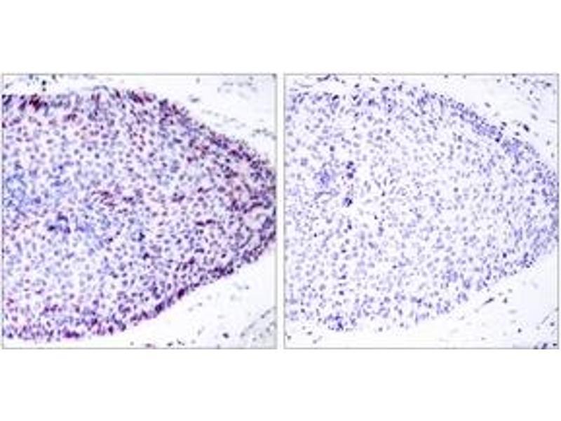 Immunohistochemistry (IHC) image for anti-Activating Transcription Factor 2 (ATF2) (AA 29-78) antibody (ABIN1532804)