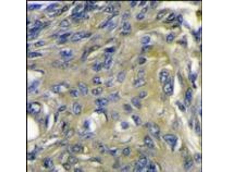 Immunohistochemistry (Paraffin-embedded Sections) (IHC (p)) image for anti-FIGF antibody (C-Fos Induced Growth Factor (Vascular Endothelial Growth Factor D)) (C-Term) (ABIN358813)