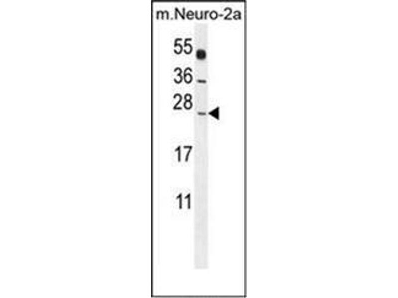 Western Blotting (WB) image for anti-Polymerase (RNA) II (DNA Directed) Polypeptide J, 13.3kDa (POLR2J) (AA 93-117), (C-Term) antibody (ABIN954242)