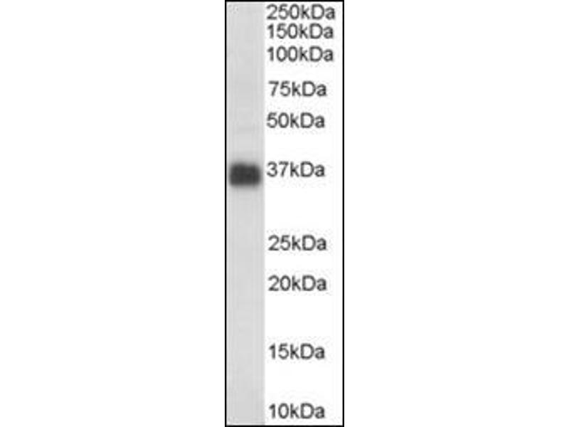 Western Blotting (WB) image for anti-Clusterin (CLU) (C-Term) antibody (ABIN614876)