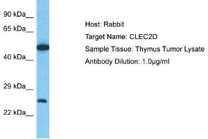 Image no. 1 for anti-C-Type Lectin Domain Family 2, Member D (CLEC2D) (C-Term) antibody (ABIN2781886)
