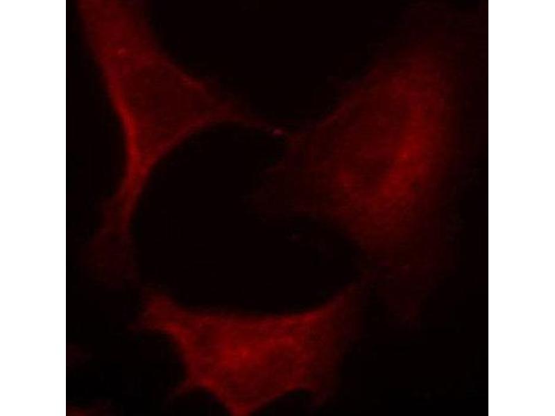 Immunofluorescence (IF) image for anti-MAP2K1 antibody (Mitogen-Activated Protein Kinase Kinase 1) (pSer221) (ABIN1870339)