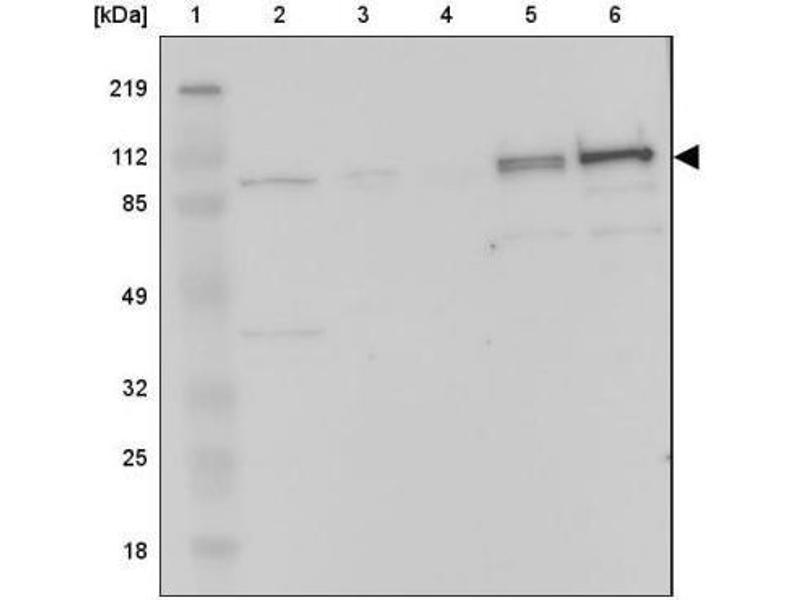 Western Blotting (WB) image for anti-Complement Factor B antibody (CFB) (ABIN4299962)