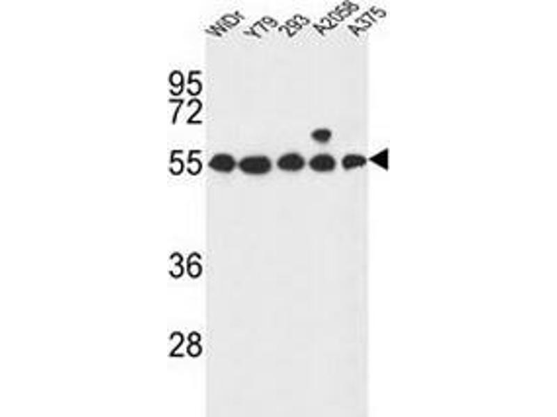 Western Blotting (WB) image for anti-G Protein-Coupled Receptor 180 (GPR180) (AA 126-155), (Middle Region) antibody (ABIN952608)