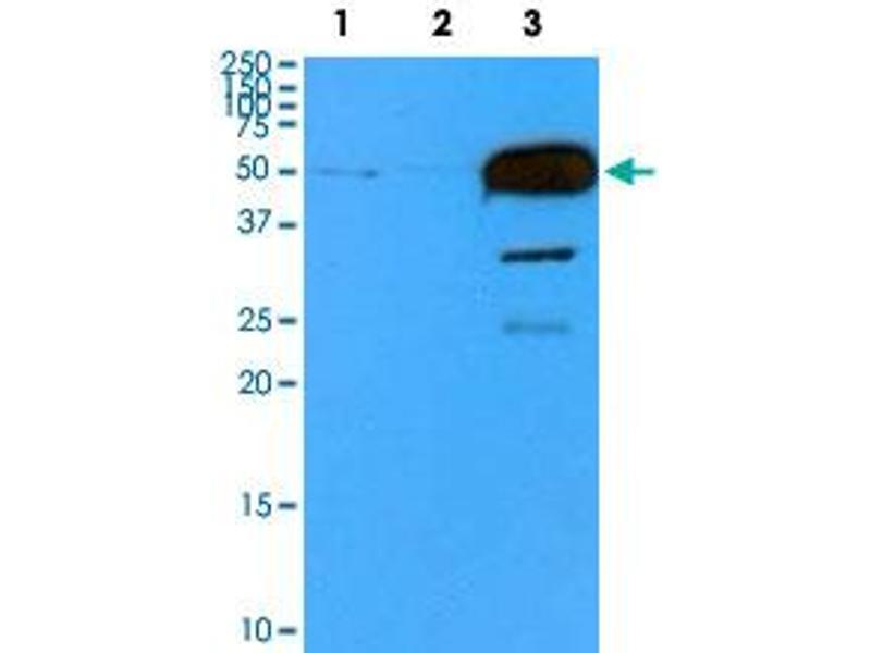 Western Blotting (WB) image for anti-Tubulin, beta 2B (TUBB2B) antibody (ABIN5590381)