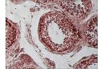 Immunohistochemistry (Paraffin-embedded Sections) (IHC (p)) image for anti-Tubulin, beta 1 (TUBB1) (C-Term) antibody (ABIN265867)