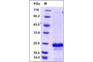 Image no. 1 for Membrane-Spanning 4-Domains, Subfamily A, Member 1 (MS4A1) (AA 213-297) protein (His tag) (ABIN2003711)